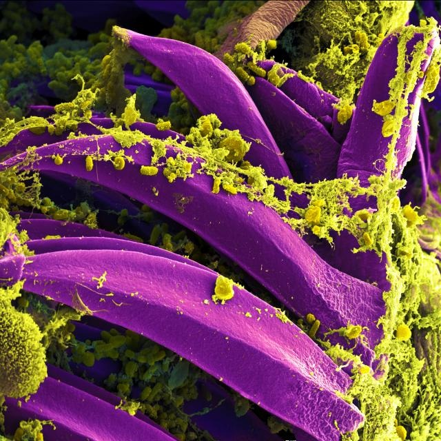 Tiny and very dangerous, the pill shapes among the yellow-green goo are Yersinia pestis, the bacteria that cause the bubonic plague. They are shown here, thanks to an electron microscope, inside the guts of a flea. Although the disease is now rare among humans and can be treated with antibiotics, the plague killed over 25 million people during the Middle Ages. Fleas spread the plague bacteria to humans by biting. (Image via NIAID)