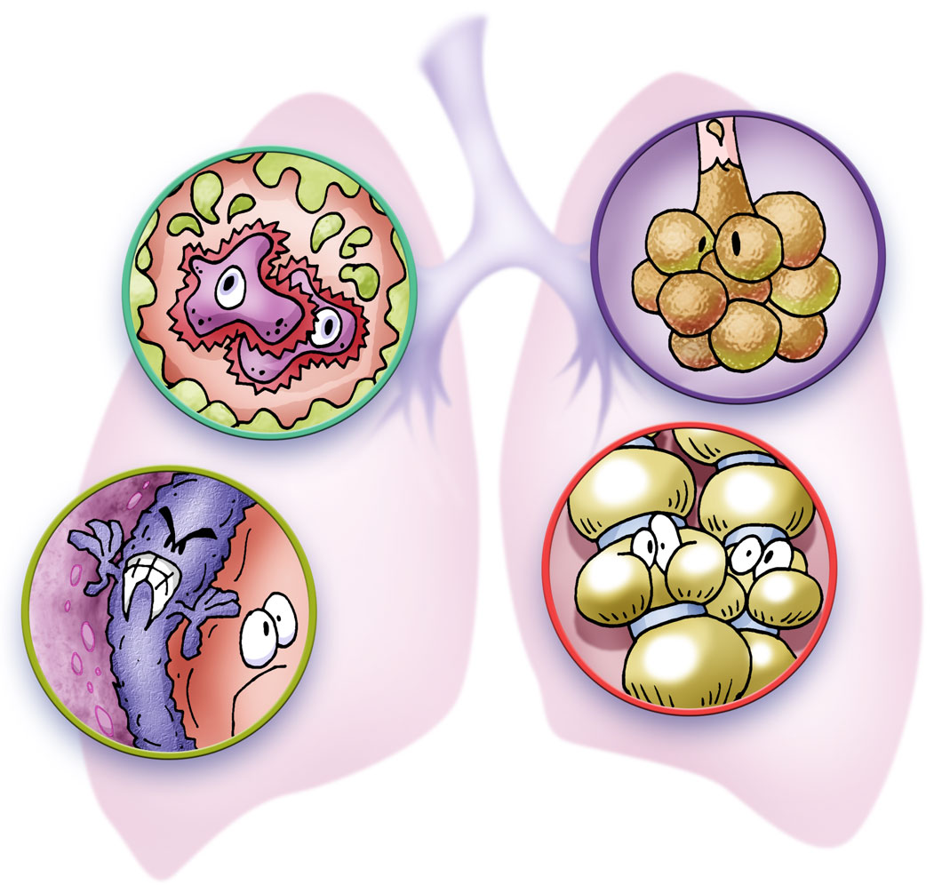 "From our Topic ""Lungs in Trouble"""