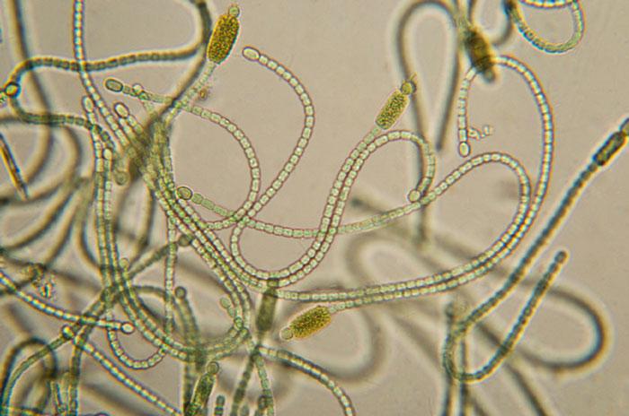 Cyanobacteria-Micrograph_700